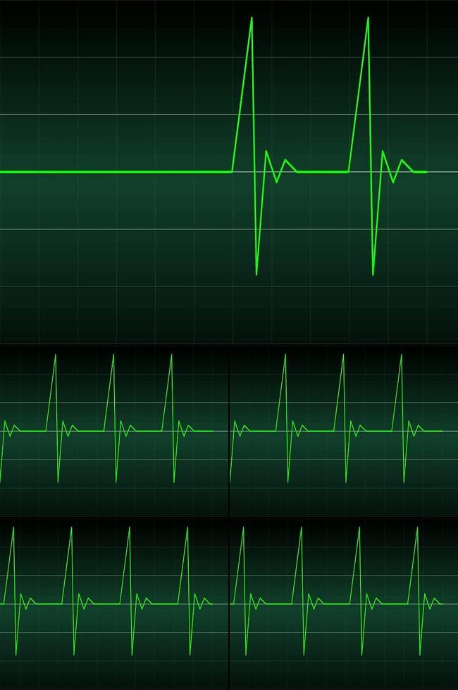 【mov】心电图波形节奏视频素材
