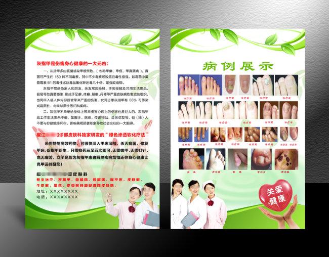 【psd】医院宣传单设计 灰指甲治疗
